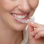 Alternativa aparatelor dentare fixe si mobile – Invisalign